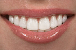 A closeup of a brilliantly white smile.