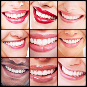 Have dental flaws affected your confidence? Our dentist in Corpus Christi serves a variety of options to reinvent not only your smile, but self-assurance.